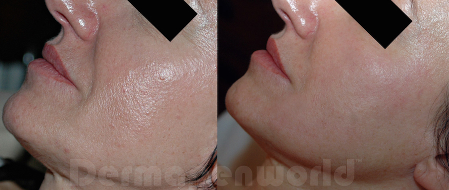 before-after-woman-chin
