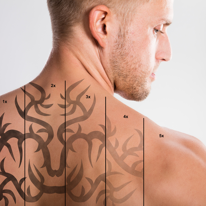 All-You-Wanted-to-Know-About-Laser-Tattoo-Removal